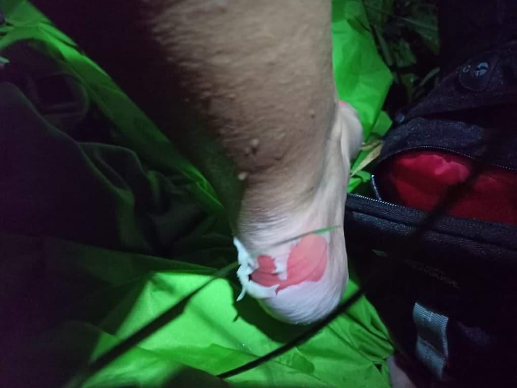 Kāpēc kāju veselība iešanas laikā ir svarīga